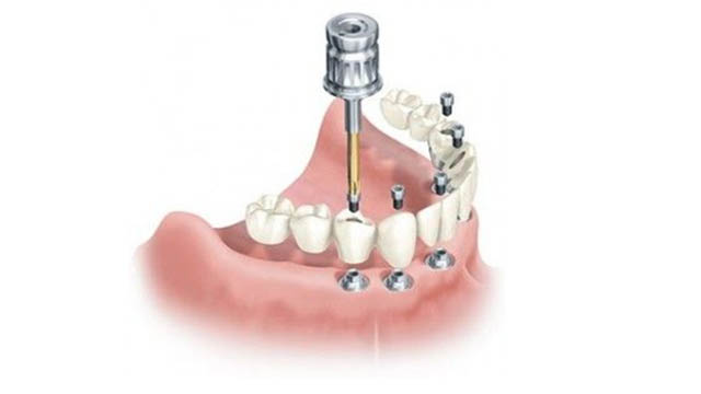 All On Four Implant